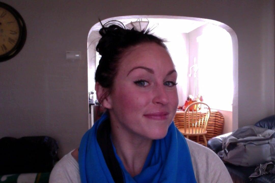 Conquering My Acne Paleomg