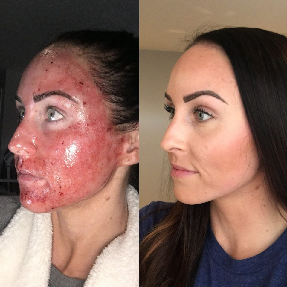 Point. Chemical facial peel recuperation period much
