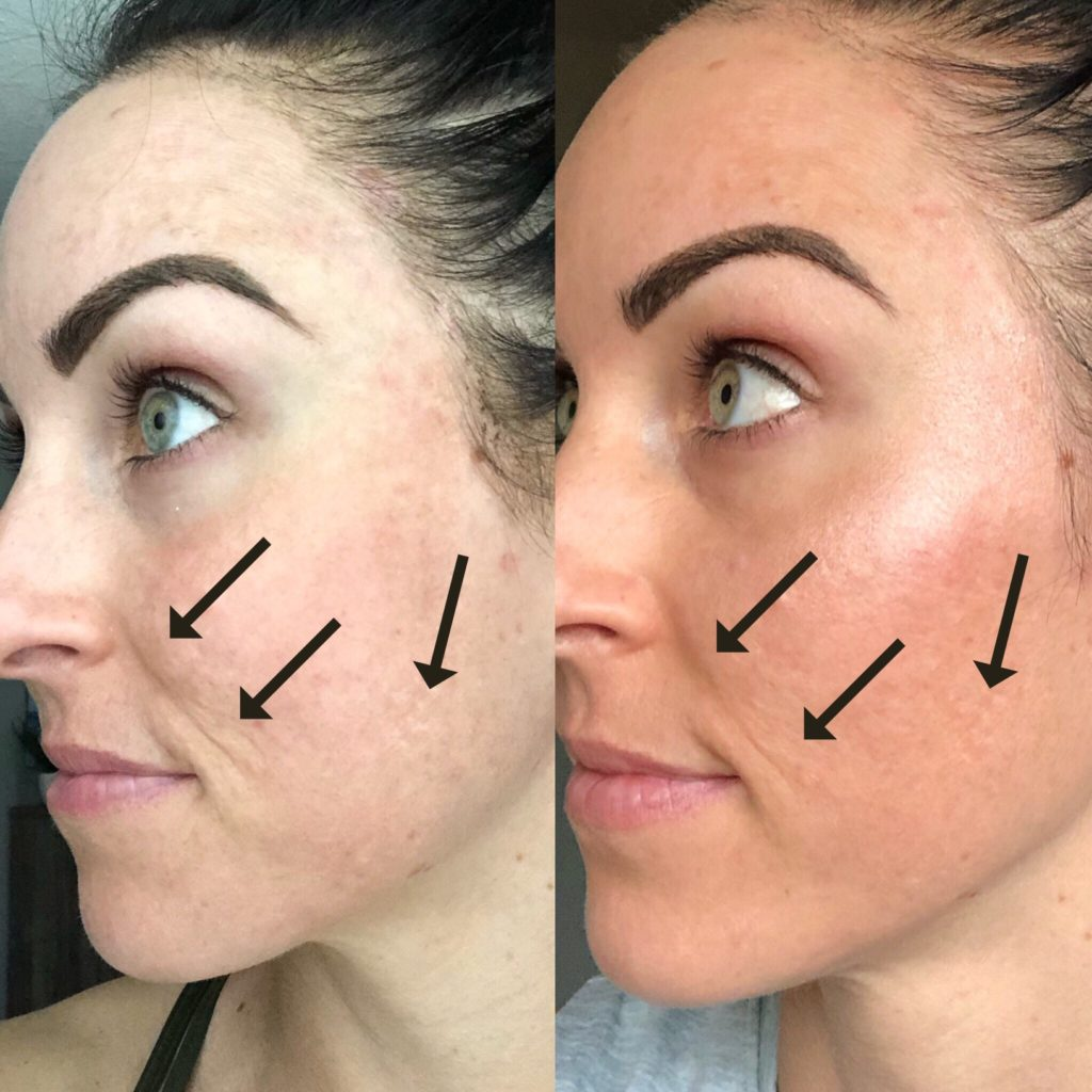 My Experience w/ Microneedling & Why I'm Obsessed - PaleOMG com