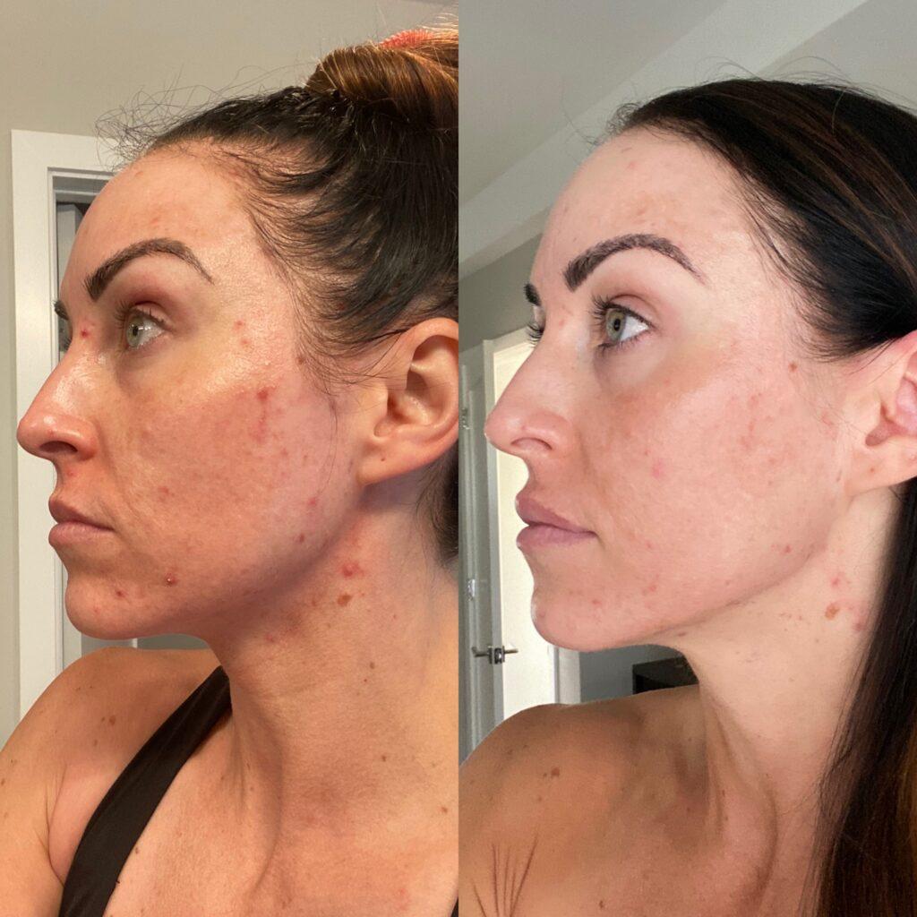 PaleOMG Bean Protocol Skin
