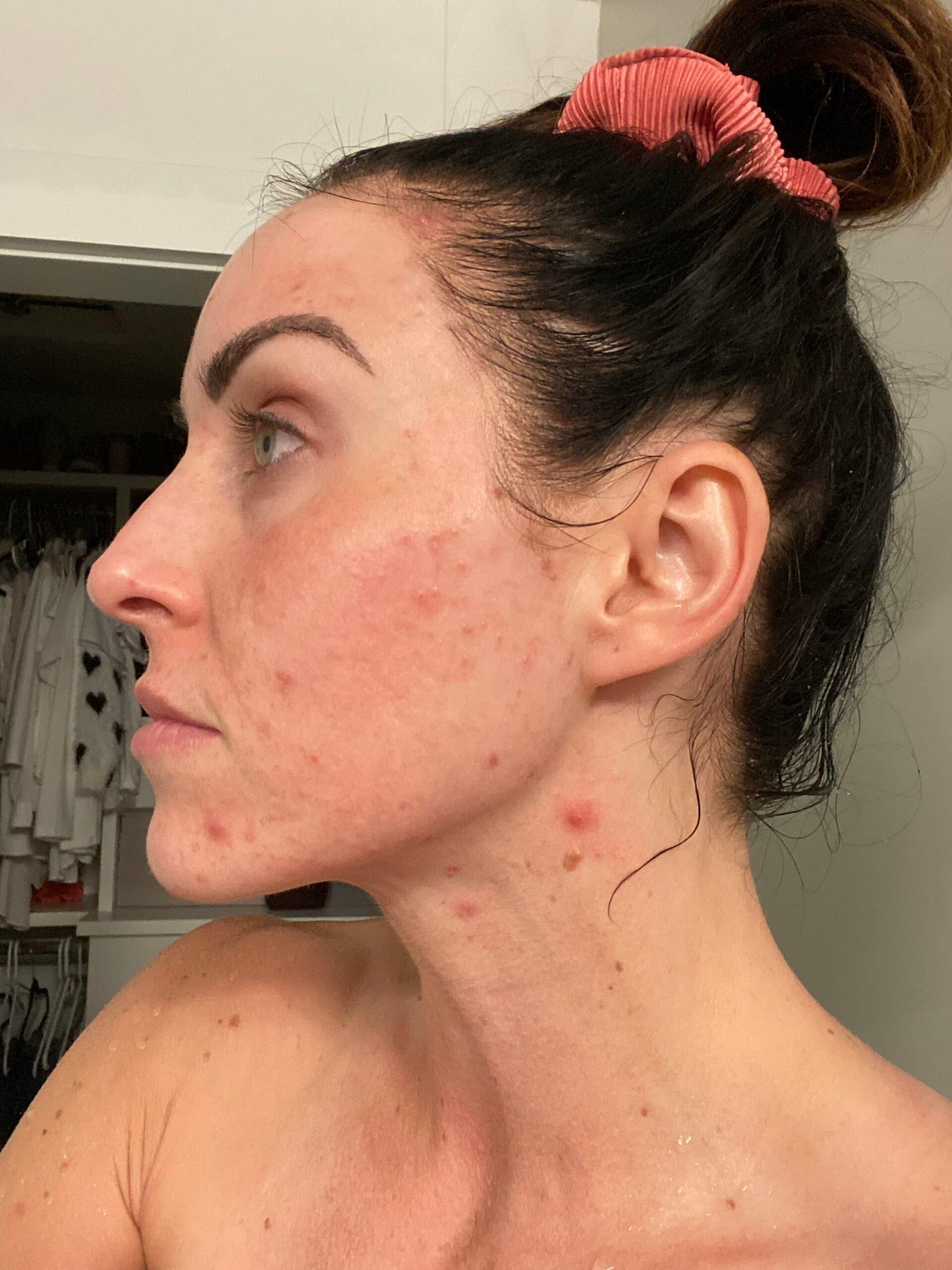 PaleOMG 3-Month Bean Protocol Recap